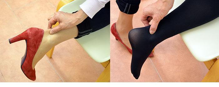 むくんでいない足のアキレス腱は伸びるほどやわらかい(左)、むくんだ足は硬くて伸びない